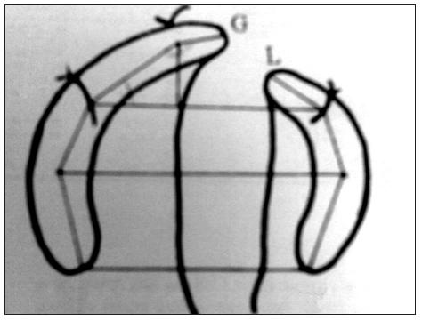 Identifikácia antropometrických bodov; Zdroj: Mazaheri et al. (1971) Fig. 3. Identification of antropometric points; Source: Mazaheri et al. (1971)
