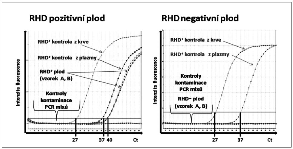 """Ukázka rozlišení <i>RHD</i> pozitivního a <i>RHD</i> negativního plodu pomocí real-time polymerázové řetězové reakce (PCR). Amplifikační křivky znázorňují fluorescenční intenzitu exonu 7 genu <i>RHD</i> v závislosti na počtu PCR cyklů (Ct). <i>RHD</i>+ kontrola z krve: <i>RHD</i>+ DNA izolovaná z leukocytů periferní krve. <i>RHD</i>+ kontrola z plazmy: <i>RHD</i>+ DNA izolovaná z krevní plazmy těhotné <i>RHD</i>- ženy. <i>RHD</i>+ plod: <i>RHD</i>+ vzorky (""""A""""a """"B"""") DNA izolované z krevní plazmy těhotné <i>RHD</i>- ženy. <i>RHD</i>- plod: <i>RHD</i>- vzorek DNA izolované z krevní plazmy těhotné <i>RHD</i> negativní ženy. Kontroly kontaminace PCR <i>RHD</i>: PCR mix pro DNA izolovanou z leukocytů s PCR vodou a PCR mix pro DNA izolovanou z plazmy s PCR vodou."""