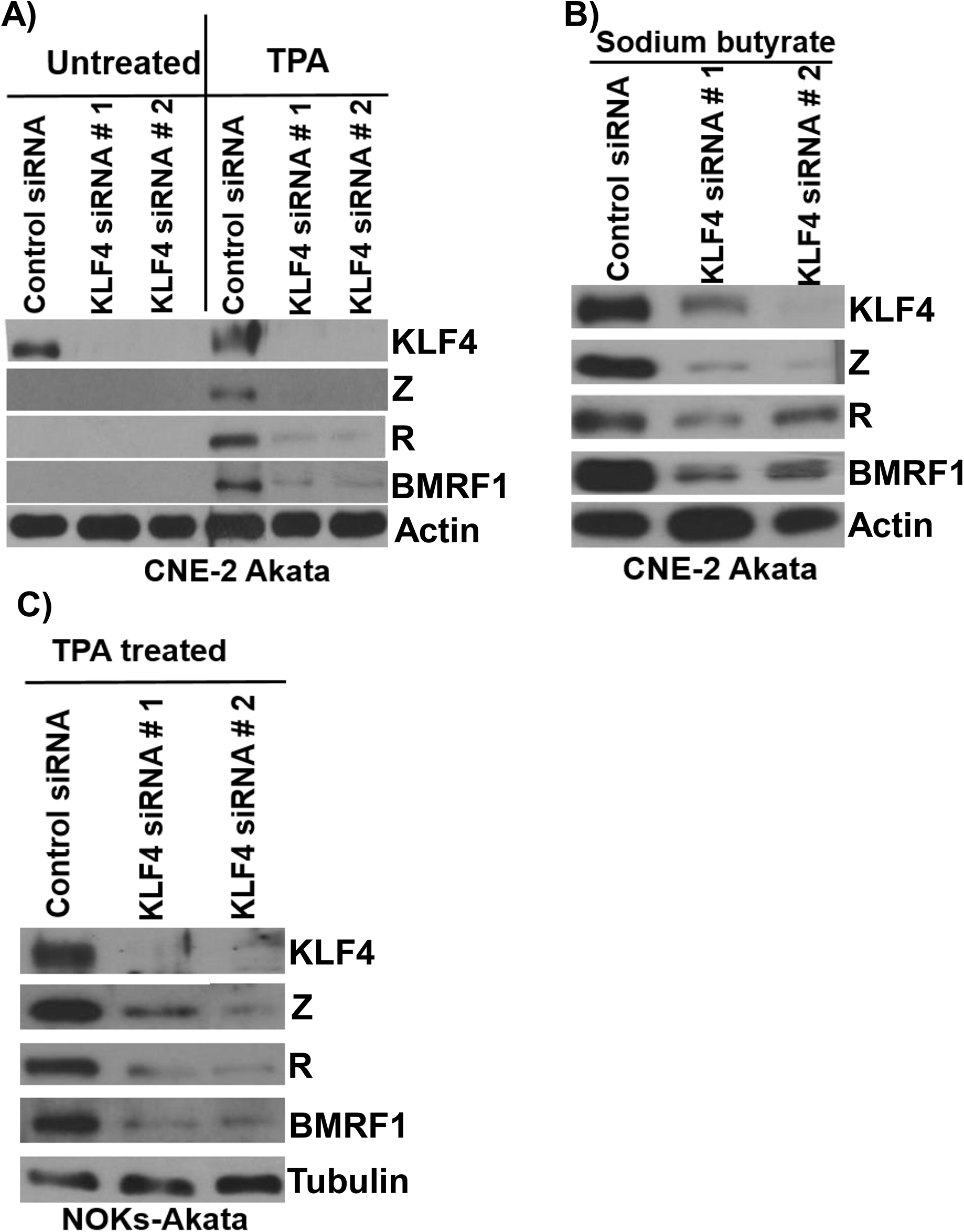 Endogenous KLF4 is required for TPA and sodium butyrate mediated lytic EBV reactivation in epithelial cell lines.