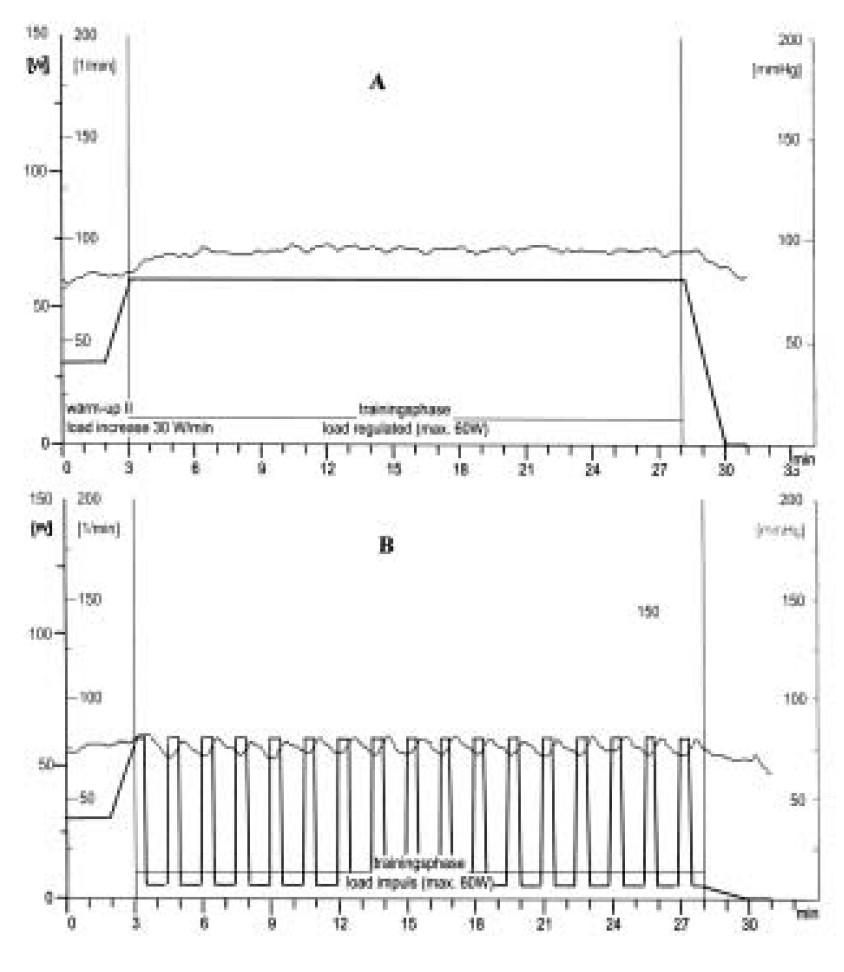 Srdeční frekvence u pacienta s ischemickou chorobou srdeční během tréninku s kontinuální zátěží (A) a intervalového tréninku (B).
