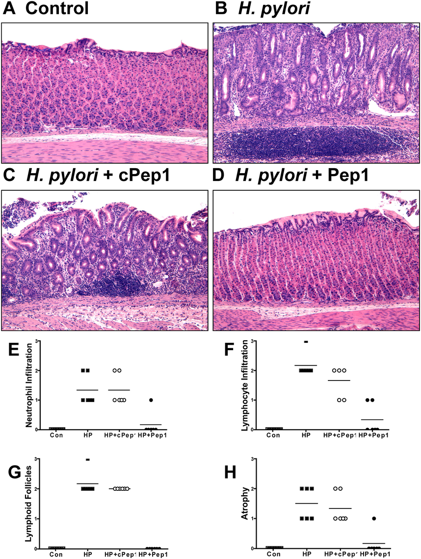 Inhibition of CD44 blocks the development of atrophic gastritis in <i>H</i>. <i>pylori</i> infected Mongolian gerbils.
