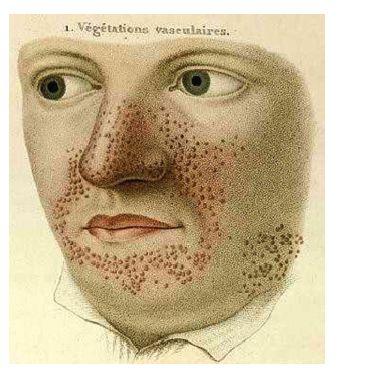 Ilustrace angiofibromů v obličeji mladého muže v atlasu Pierre-Olive Françoise Rayera z roku 1835 [20]