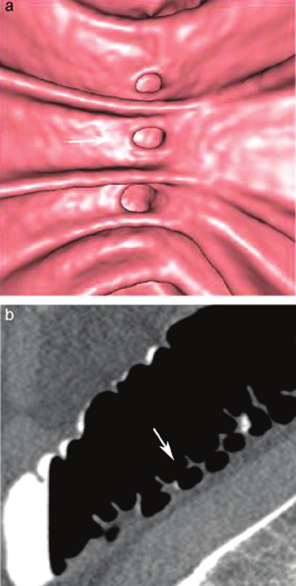 CT kolonografie: detail divertiklů
