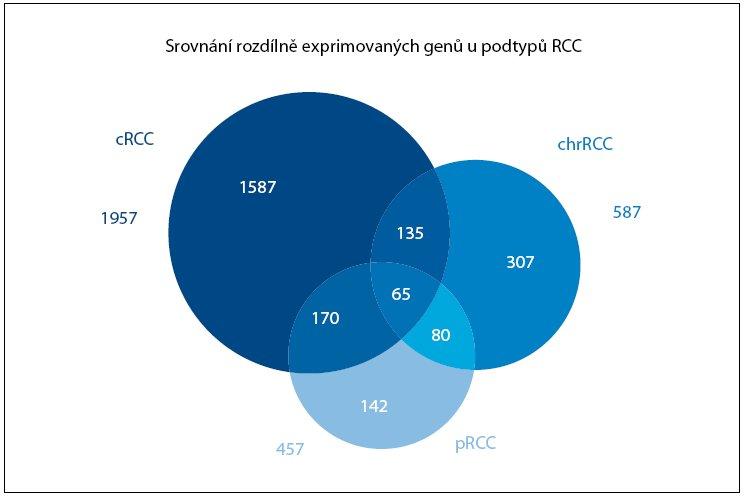 Množinový diagram znázorňující souvislost jednotlivých histologických podtypů Rcc (cRCC – světlobuněčný renální karcinom, pRCC – papilární renální karcinom, chrRCC – chromofobní renální karcinom) na úrovni profi lů genové exprese. Čísla udávají počty genů se signifi kantně rozdílnou expresí. Upraveno podle Jonese et al [9].