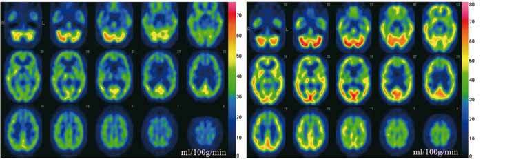 Fig. 1. SPECT images. Single photon emission computed tomography (SPECT) by the <sup>99m</sup>Tc-ECD Patlak Plot method. A (left): SPECT images from the first examination (three days after onset). Regional cerebral blood flow is decreased in most brain regions. B (right): SPECT images from the second examination (one month after onset). Regional cerebral blood flow is increased in most brain regions as compared to those in A.