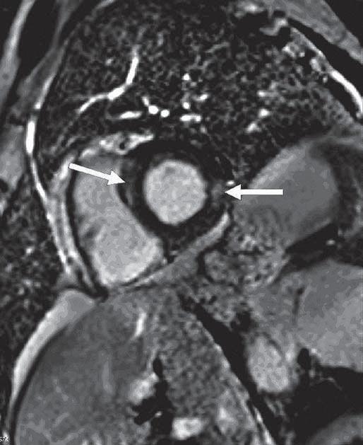 Magnetická rezonance srdce – vyšetření inverzní gradientní sekvencí v rovině v krátké ose levé komory po podání gadoliniové kontrastní látky (vyšetření z ledna 2014). Fig. 3. Magnetic resonance imaging of the heart – an examination of the inverse gradient sequences in the plane short axis of the left ventricle following administration of a gadolinium contrast agent (January 2014).