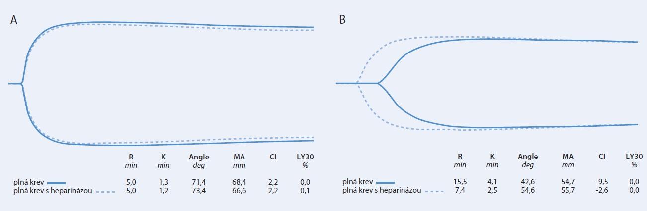 Obr. Tromboelastogram u těhotné (A) a netěhotné ženy (B) v čase 4 h po subkutánní aplikaci 40 mg enoxaparinu. Plná křivka představuje standardní vyšetření, přerušovaná vyšetření s heparinázou.