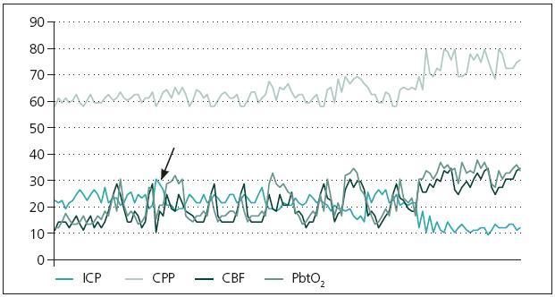 Změny ve sledovaných modalitách u pacienta po dekompresivní kraniektomii. Šipkou je označena elevace ICP na hodnotu 32 mmHg, jež byla indikací k provedení dekompresní kraniektomie.