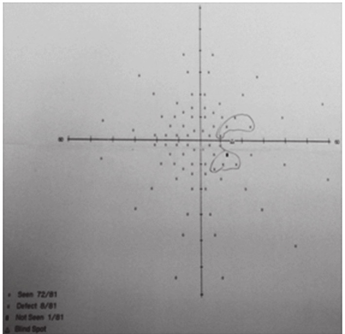 Vstupní perimetrické vyšetření s rozšířením Mariottova bodu na pravém oku