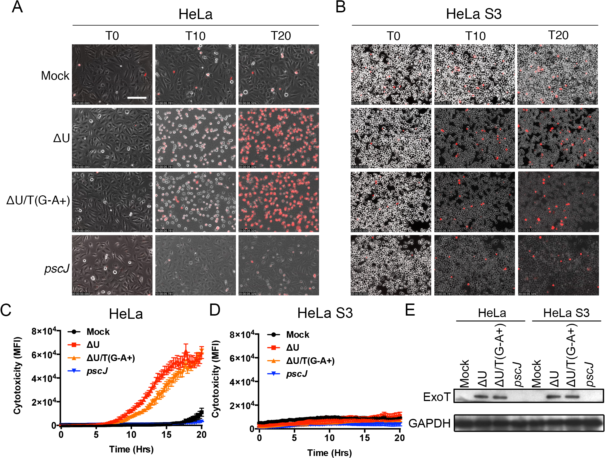 Anoikis resistant HeLa S3 cells are resistant to ExoT/ADPRT-induced cytotoxicity.