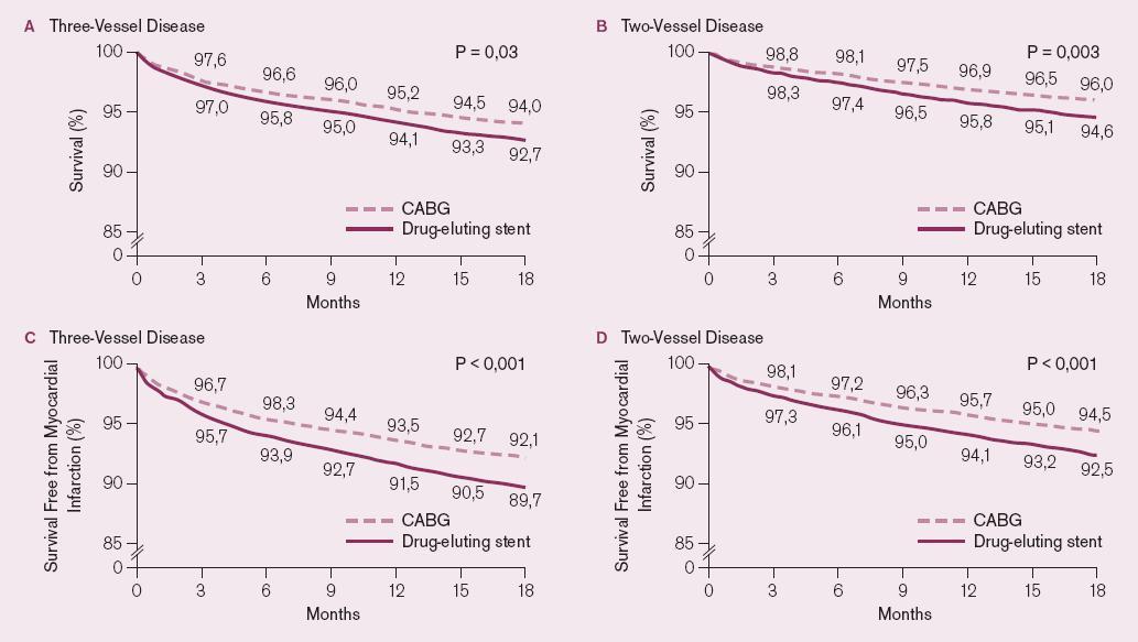 DES vs CABG. Dlouhodobé přežití a výskyt infarktu myokardu podle počtu postižených koronárních tepen.