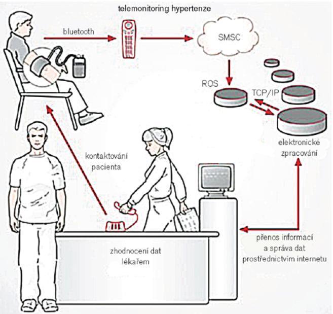 Schéma přenosu dat při telemonitoringu tlaku. SMSC – Short Message Service Counter, ROS – Remote Operation Service, TCP/IP – internetový protokol přenosu dat. Upraveno podle [19].