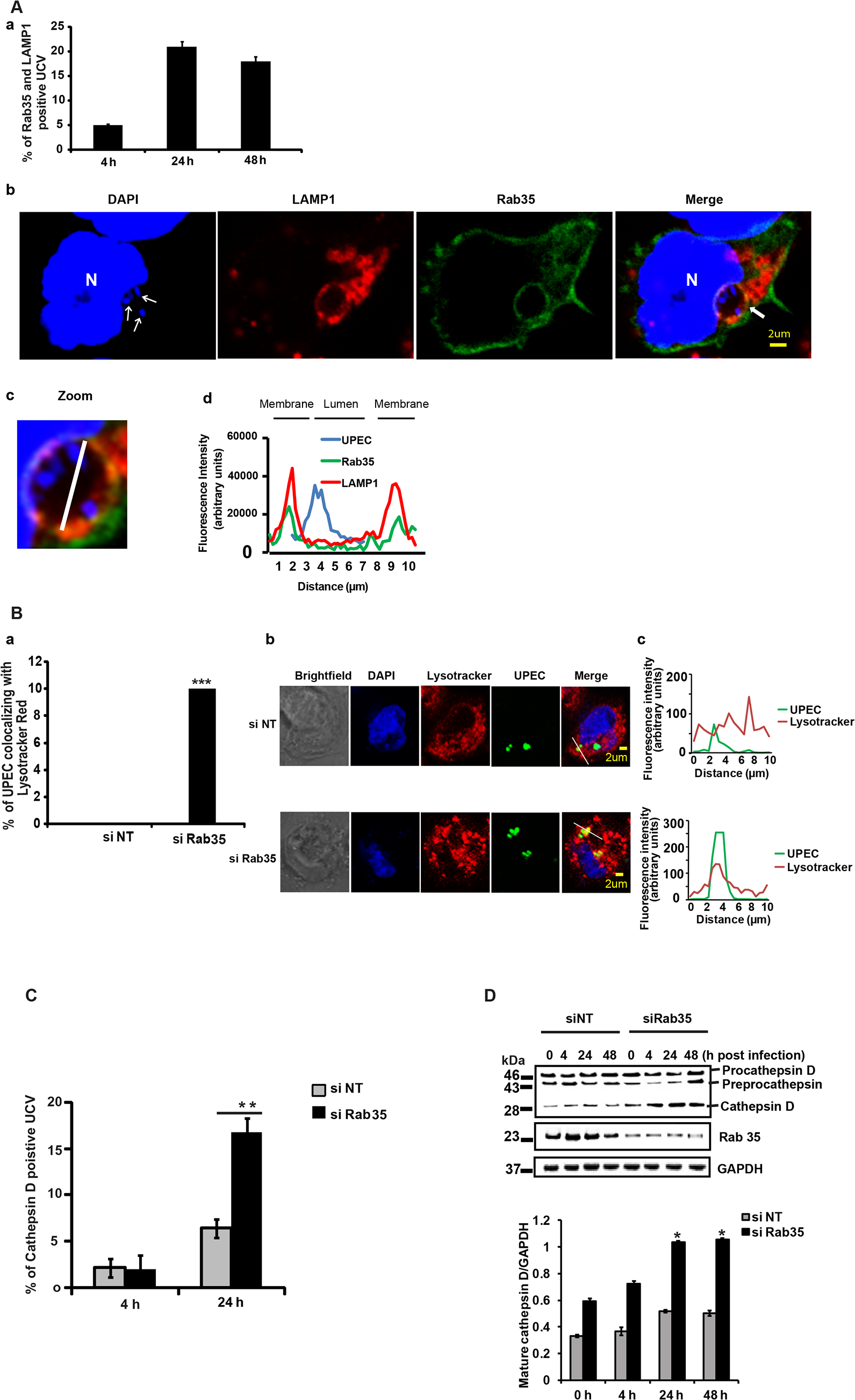 Loss of Rab35 targets UPEC to late lysosomal compartment.