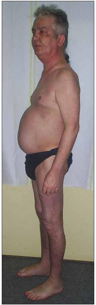 Typická faciotrunkální obezita s měsíčkovitým obličejem a hubenými končetinami u pacienta s rysy Cushingova syndromu.