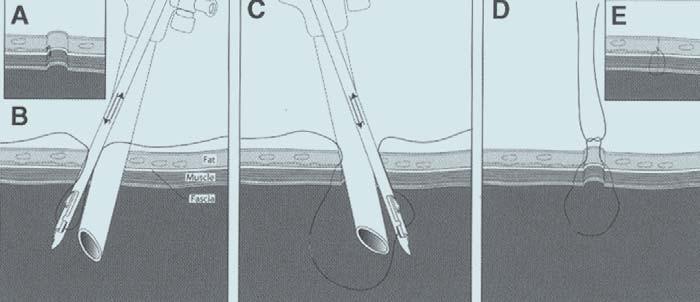 ((A) Port s tangenciálně poraněnou cévou. (B) Umístění faciálního stehu se zabráním poraněné cévy. (C) Dotažením uzlu se uzavírá otvor portu a současně je ligována poraněná céva.