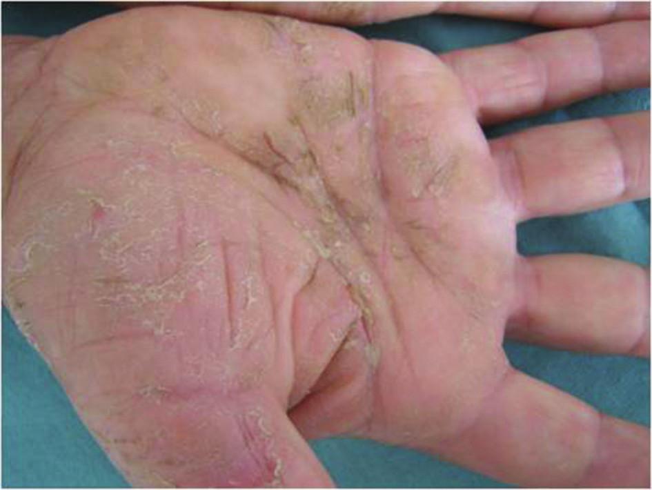 Chronická iritační kontaktní dermatitida na dlaních po pracovních rukavicích