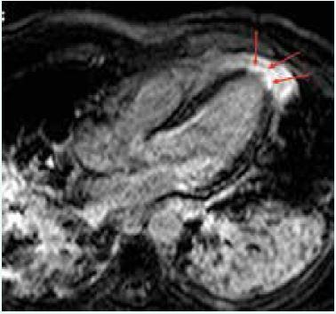MRI nález pacientky s akutním infarktem myokardu