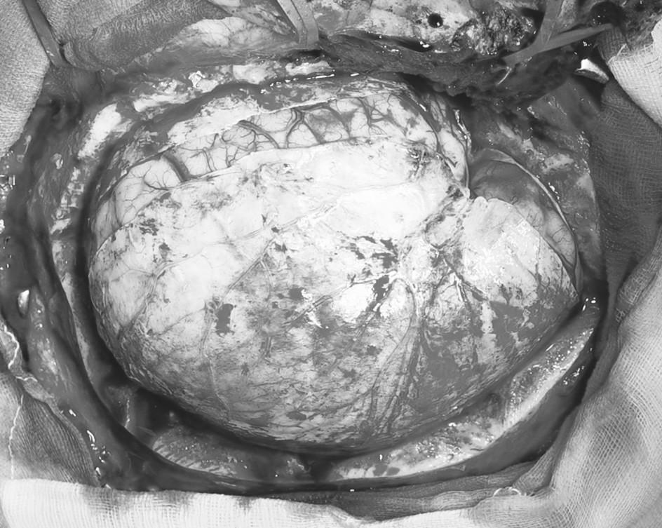 Durotomie s následným defektem tvrdé pleny způsobeným prolapsem edematózní hemisféry Pic. 7. Durotomy with a following dural defect resulting from a prolaps of the edematous hemisphere