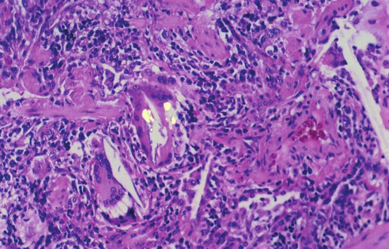 Extrinsická alergická alveolitida s drobným granulomem v sousedství bronchiolu. Jedna z obrovských vícejaderných buněk obsahuje ve své cytoplazmě dvojlomný cizorodý materiál. Polarizované světlo, 160krát