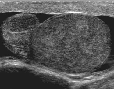 Schéma 13. Epididymitida-orchitida na 2D ultrazvukovém zobrazení v šedé škále zobrazena jako zvětšené a heterogenní varle i nadvarle.