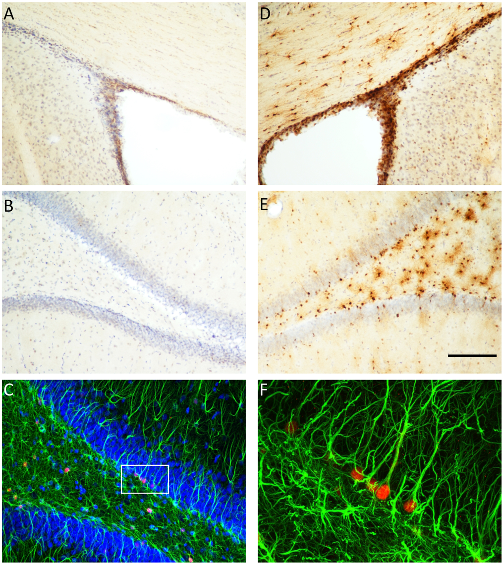 Thymidine kinase is expressed in the SVZ and DG, and co-localizes with GFAP positive cells.