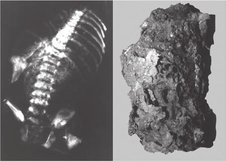 Průkaz přítomnosti torza těla novorozence na rentgenovém snímku (A) spečené hmoty vyjmuté z pece (B). Vražda novorozence matkou.