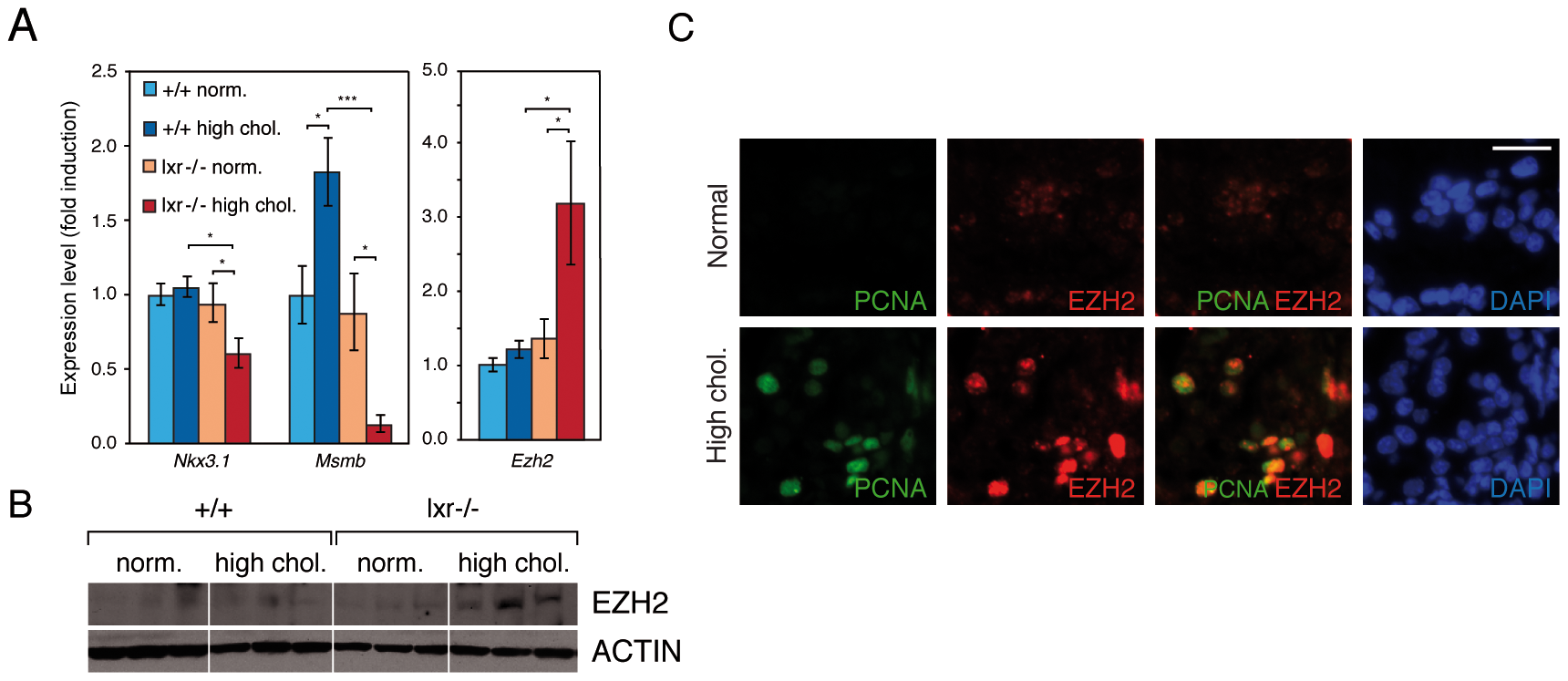 Disruption of cholesterol homeostasis induces the repression of <i>Nkx3.1</i> and <i>Msmb</i> tumor suppressor genes and upregulation of the <i>Ezh2</i> histone methyltransferase gene.