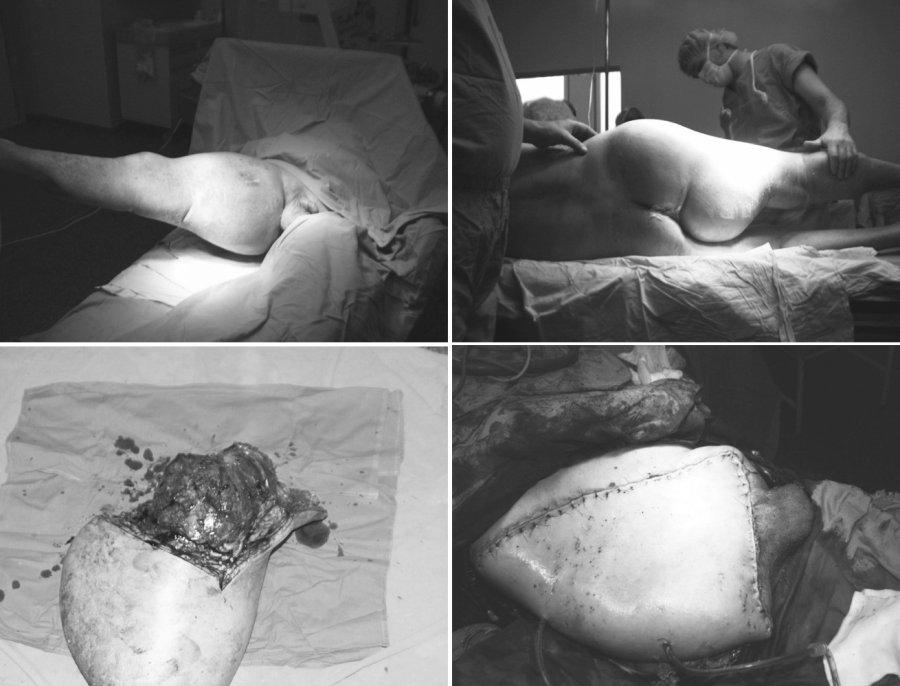 a-d. Rozšířená hemipelvectomie, peroperační foto Pic. 1a-d. External hemipelvectomy, peroperative picture