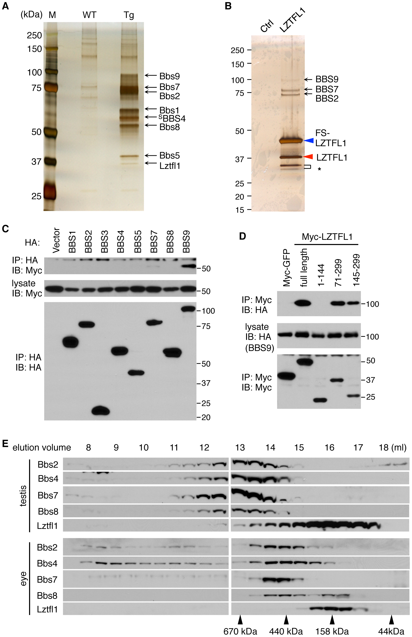 Identification of LZTFL1 as a BBSome interacting protein.
