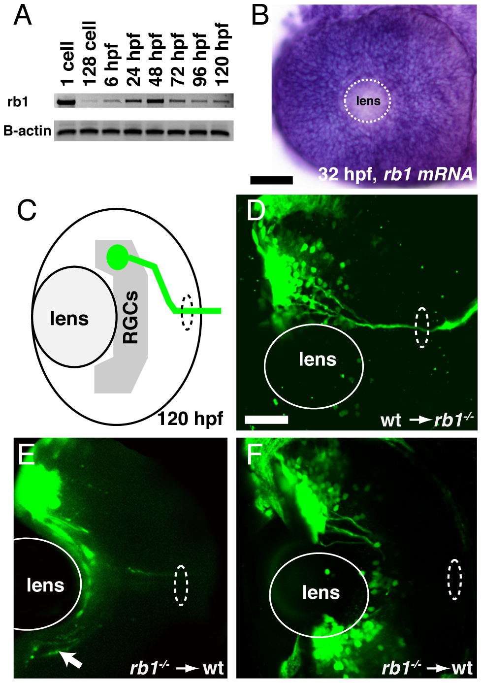 <i>rb1</i> is required in RGC axons to regulate retinal exit.