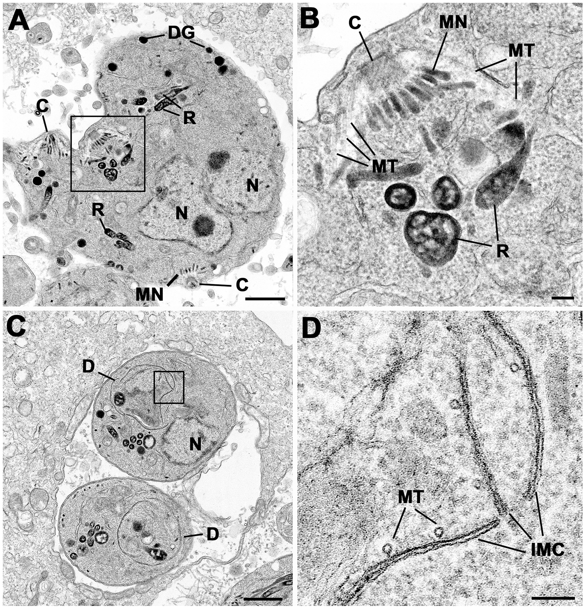 Electron micrographs of parasites cultured with Shld-1.