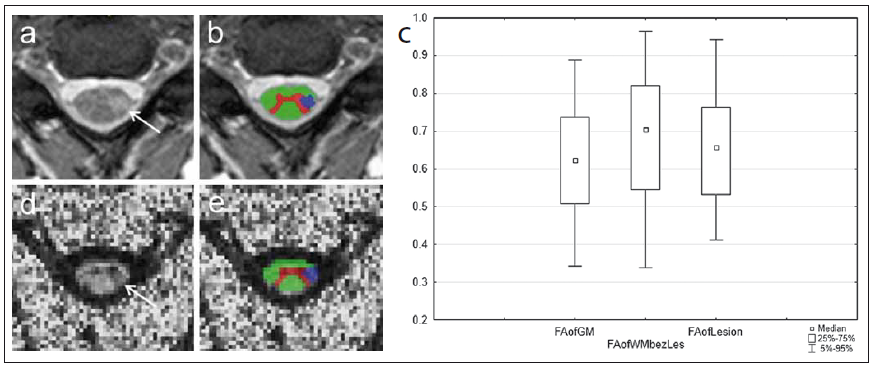 MR vyšetření u pacienta s roztroušenou sklerózou s hyperintenzním míšním ložiskem patrným na axiálním T2 váženém obraze gradientního echa (šipka na panelu a). Léze je sledovatelná i v obraze zobrazení tenzorů difuze v podobě snížení intenzity signálu na mapě frakční anizotropie (FA) (d). Fig. 7. MRI examination in a patient with multiple sclerosis with a hyperintense spinal cord plaque apparent on the axial T2-weighted image of gradient echo (arrow on panel a). The lesion is perceptible also in the diffusion tensor imaging image in the form of reduced signal intensity on the fractional anisotropy (FA) map (d).