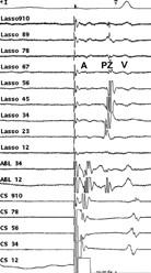 Intrakardiální EKG záznam za stimulace z koronárního sinu během aplikace radiofrekvenční energie.