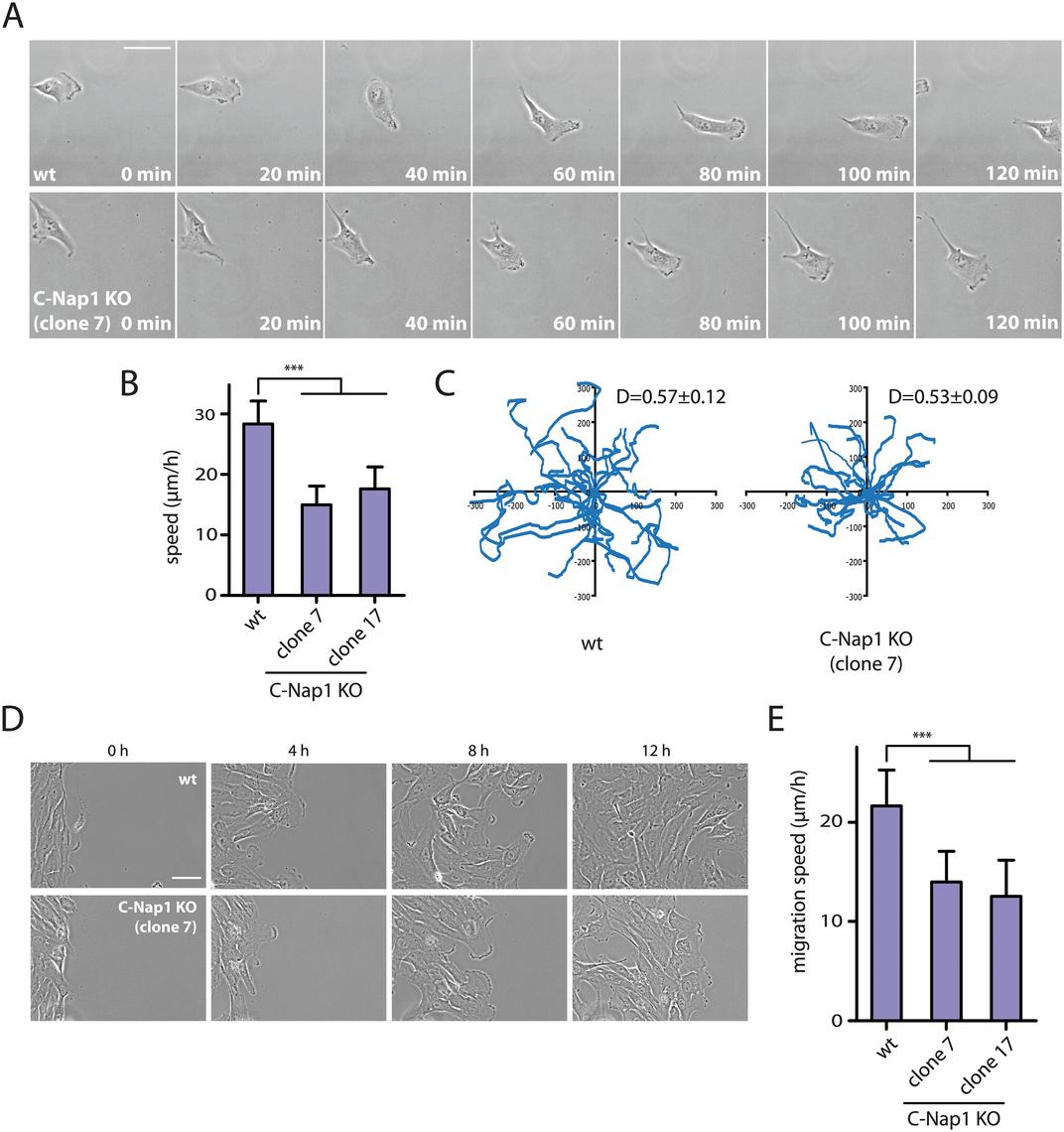 RPE1 C-Nap1 KO cells have reduced migration speed.