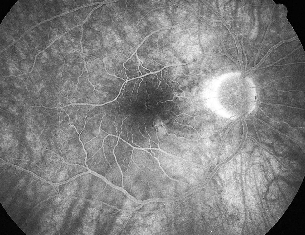 Pac. č. 5: Fluoresceínová angiografia PO po 2 týždňoch: jemné presakovanie pri č. 5 a 6, temporálne hore od TZN už len transmitujúca fluorescencia a pretrváva ablácia neuroepitelu retiny pod makulou okolo dolného temporálneho cievneho zväzku