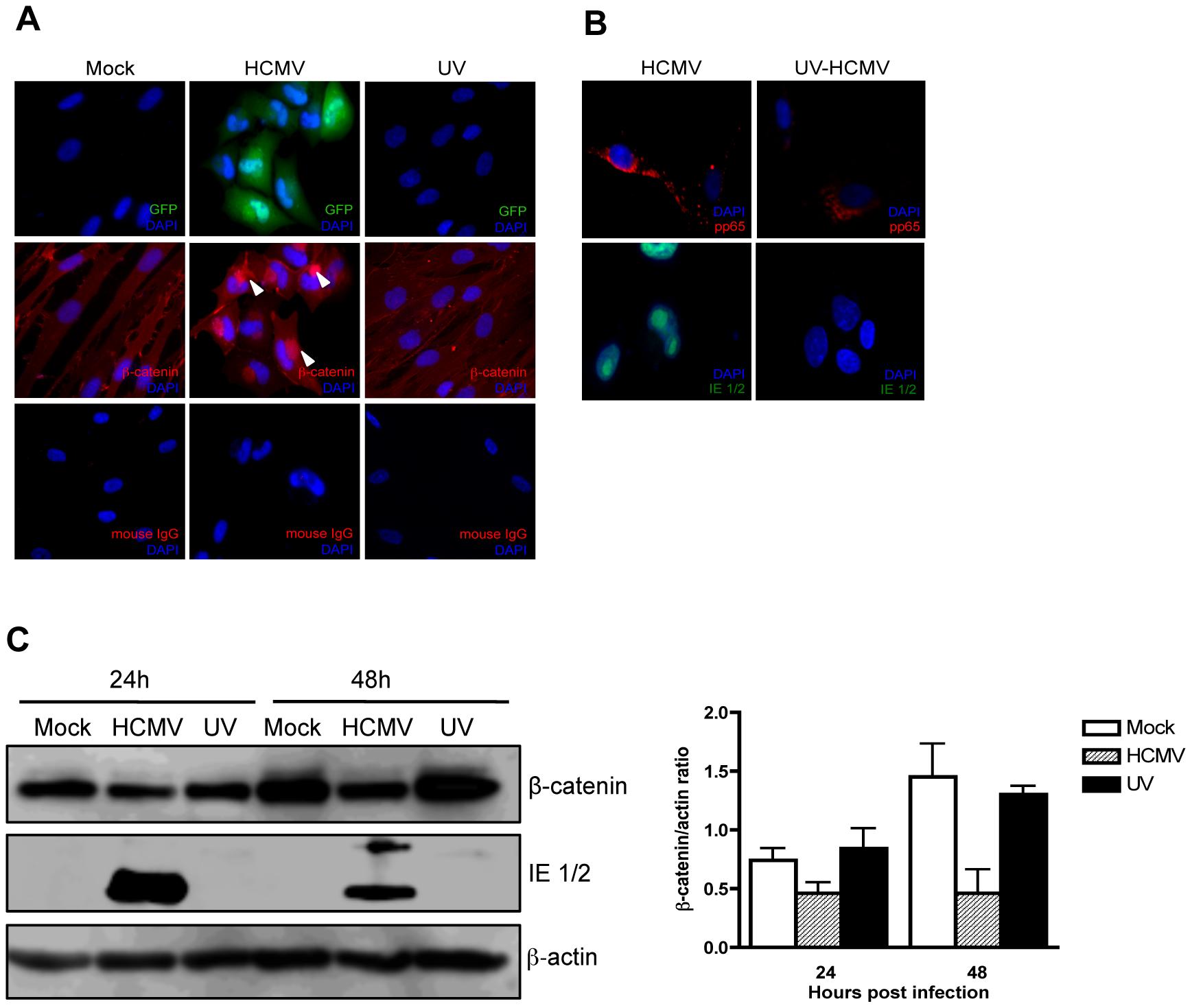 Effect of UV-inactivated HCMV on β-catenin degradation.