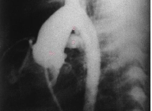 Aortogram (laterální projekce) ukazuje malou dučej.