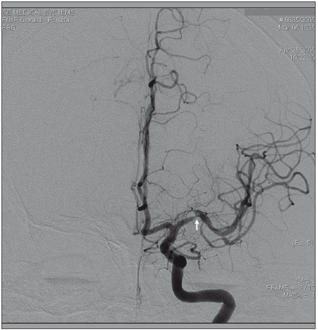 Stenóza distálního kmene a. cerebri media (šipka) detekovaná pomocí digitální subtrakční angiografie.