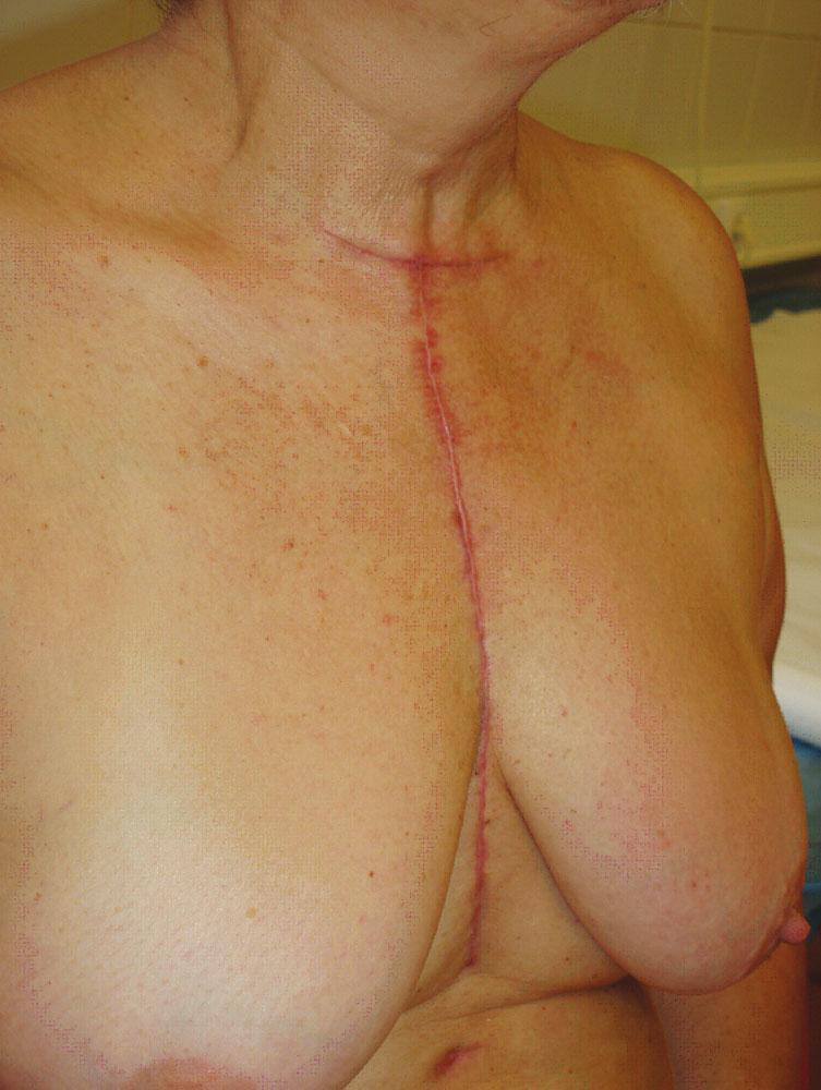 Pacientka 2 měsíce po operaci
