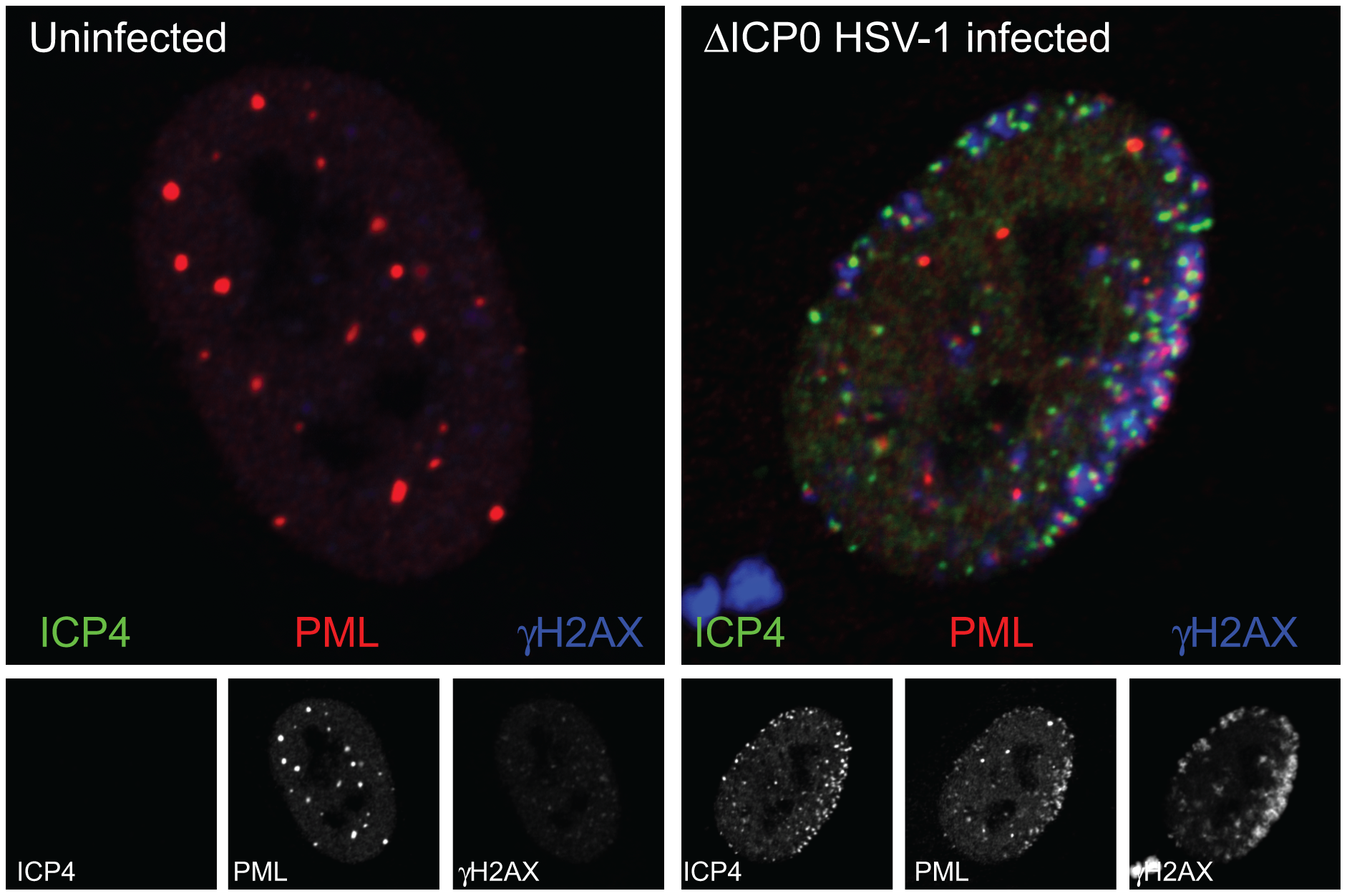 The association of PML and DNA damage response foci with HSV-1 genomes.