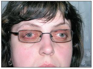 Foto obou očí s ptózovou podpěrou – čelní pohled