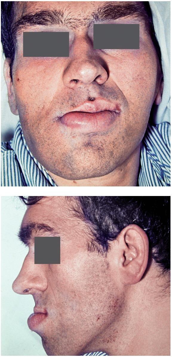 Obr. 3 a, b. Obličej muže postiženého akromegalií z frontálního pohledu (a) a bočního pohledu (b), pacient též na obr. 1 a 6b (foto: archiv Stomatologické kliniky LF UK a FN Hradec Králové)