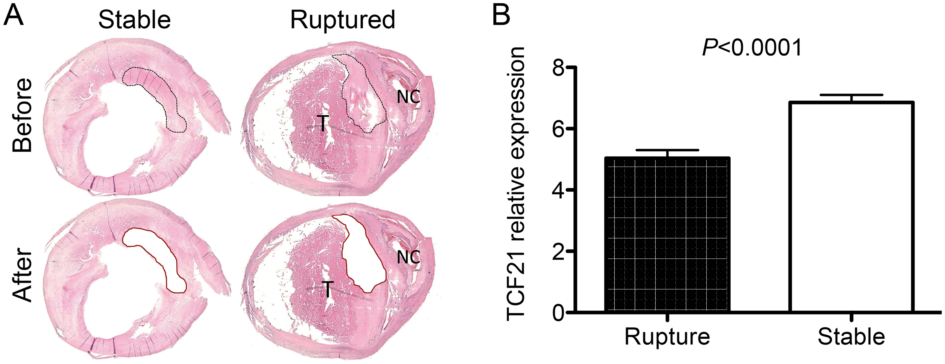 Differential <i>TCF21</i> gene expression in fibrous cap of stable vs. ruptured atherosclerotic plaque.