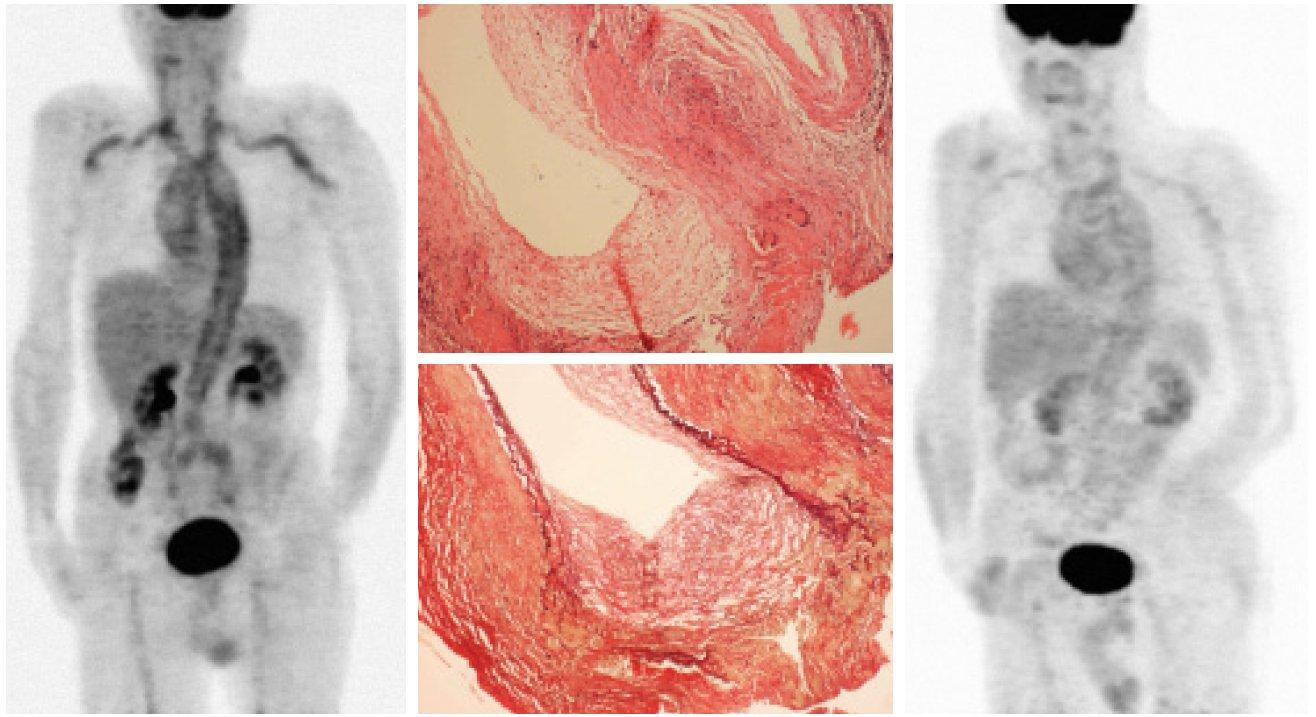 Kazuistika, muž 65 let s histologicky ověřenou temporální arteriitidou.