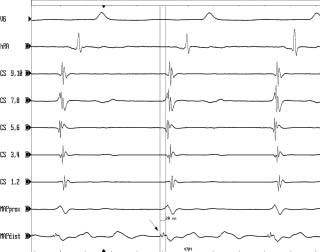 Mapování fokální síňové tachykardie z levé srdeční síně.  Mapování 3 katétry uloženými v horní části pravé síně (hRA), v koronárním sinu (CS) a v levé srdeční síni (MAP) při běžící síňové tachykardii odhaluje, že aktivace levé síně kolem mitrálního prstence (CS) je časnější než aktivace v horní části pravé síně (hRA), tedy v blízkosti SA uzlu. Konečně, nejčasnější aktivace snímaná distální dvojicí elektrod ablačního katétru (MAPdist) v místě vzniku tachykardie v dolní části levé síně je ještě o 20 ms časnější než aktivace v koronárním sinu. Nejčasnější místní potenciál (šipka) v místě ektopického ložiska se nevyznačuje žádnou diastolickou nebo frakcionovanou presystolickou aktivitou. Rychlost posunu EKG záznamu je 200 mm/s.