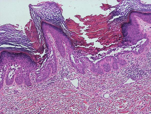 Morbus Darier – suprabazální akantolytické štěrbiny v epidermis (HE, zvětšeno 100x).