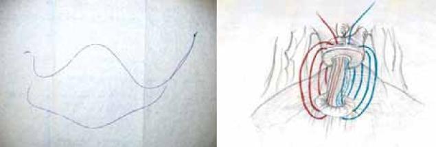 Svázaná polyglykolová monofilamentozní vlákna a technika sutury uretrovezikální anastomózy pokračujícím stehem.