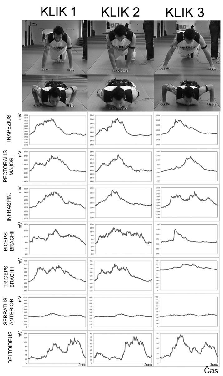 EMG záznam elektrické aktivity svalů při provedení různých modifikací kliku.