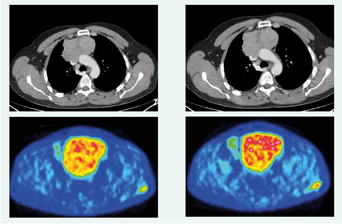 CT a PET CT z mája roku 2017. Z archívu spoluautorky MUDr. M. Černej, CSc.