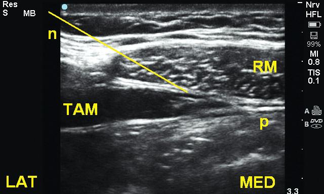 Rovina mezi m. transversus abdominis a m. rectus (TRAP) v subkostální oblasti TAM – m. transversus abdominis, RM – m. rectus abdominis, n – jehla
